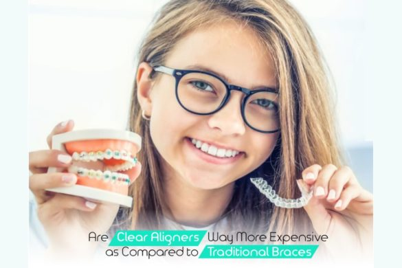 Clear Aligners Way More Expensive As Compared To Traditional Braces