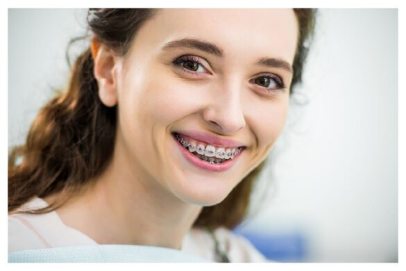 Guide to Orthodontics for Adults