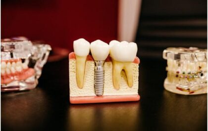 Questions to Ask Before Getting a Dental Impact