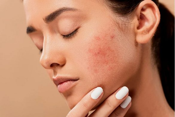 How Do You Clear Up Rosacea