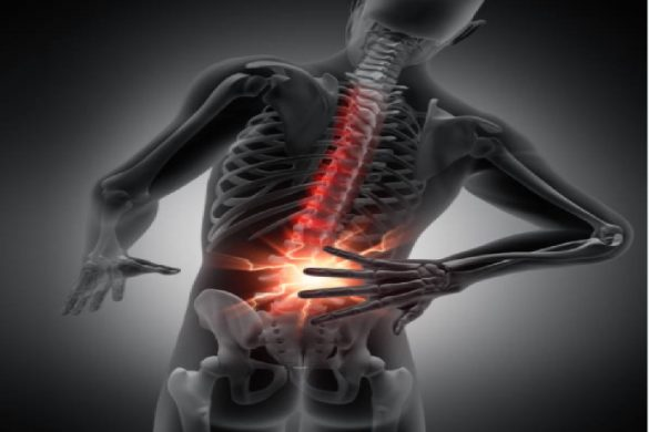 What Is Herniated Discs